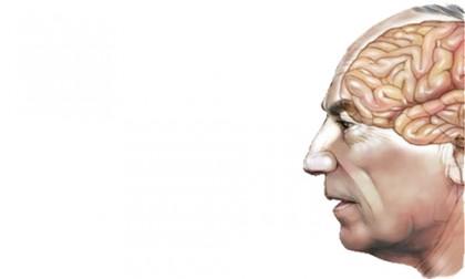 Hope for Alzheimer's
